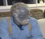 Man turns blue after using silver extract for skin treatment